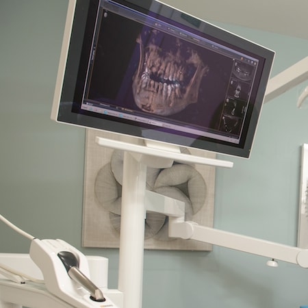 Treatment room monitor showing digital impressions of a patients dental implants