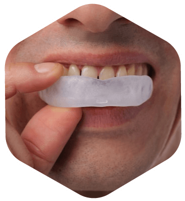 Man placing his new custom-made mouth guard into his mouth